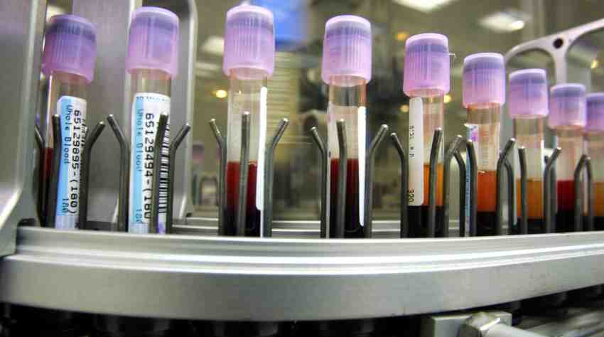 researchers-develop-first-blood-test-to-accurately-diagnose-depression-and-schizophrenia_insights_success